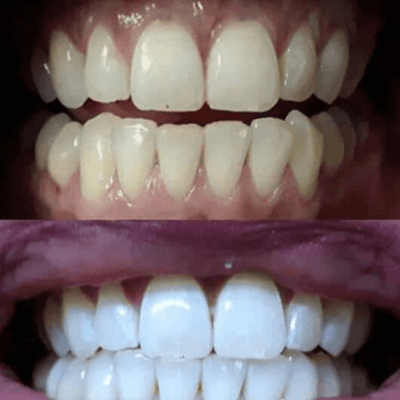 Snow Teeth Whitening Is It Efficient The Teeth Blog
